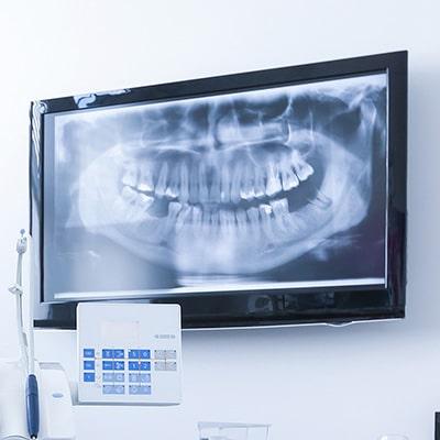 A dental office with a digital X-ray
