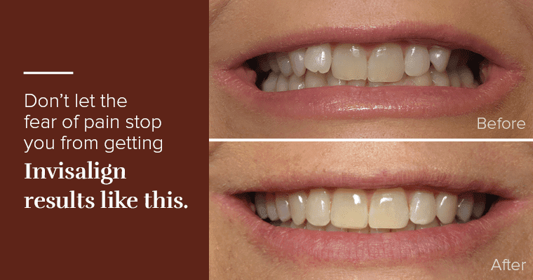 """Before and after Invisalign photos with text, """"Don't let the fear of pain stop you from getting Invisalign results like this."""""""