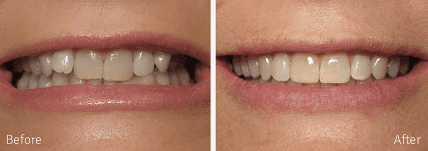 Before and after Invisalign smile in Columbus, GA